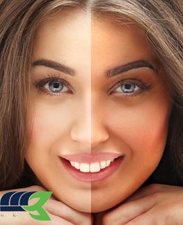 روغن برنزه کننده پوست