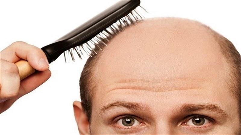 خواص و مزایای آویشن برای مو